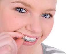 マウスピース歯列矯正