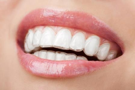 マウスピース歯科矯正とは?