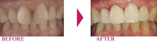 超短期の歯並び治療