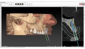 ノーベルガイドなら前歯でも正確にインプラントを入れられます