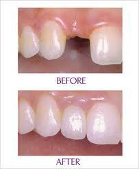 審美性が求められる前歯部のインプラント