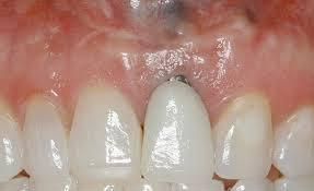 歯肉の保存が必要な前歯部のインプラント