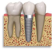 インプラントは独立しており、他の歯に負担がかかりません。