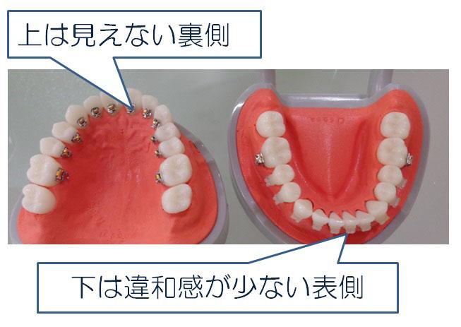 ハーフリンガル歯科矯正とは?