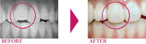 短期部分歯列矯正 矯正歯科